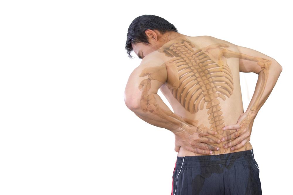 Blocco vertebrale lombare, cifosi, gambe a X risolto con metodo Sanrocco
