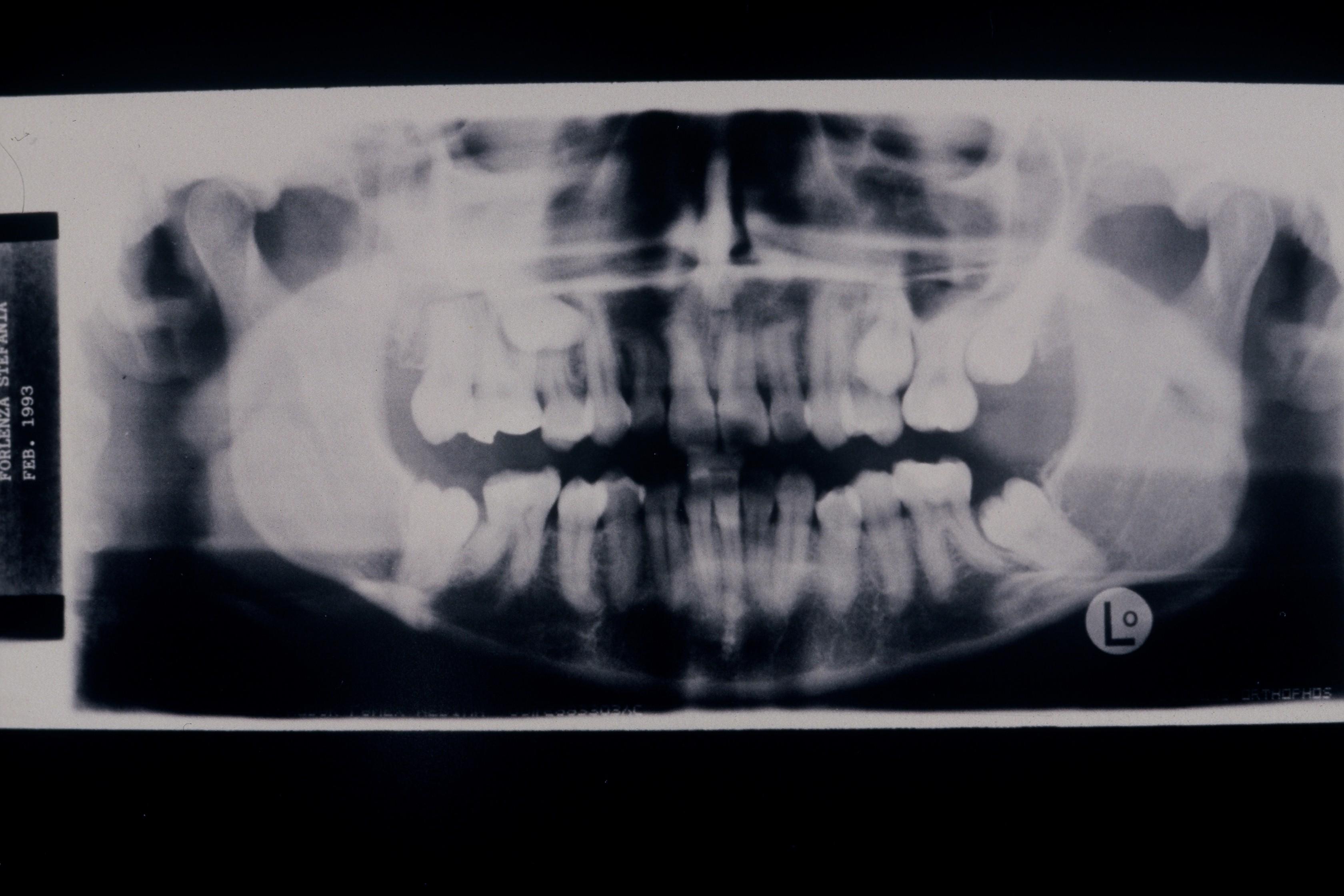 Postura scorretta cifosi e scoliosi: non dimentichiamo la bocca.
