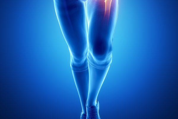 artrosi anca
