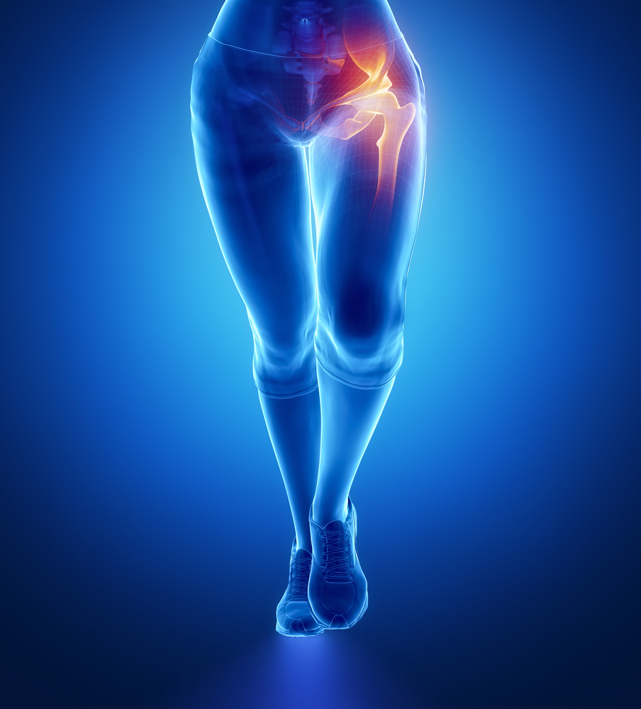Dolore e artrosi all'anca risolvibile con la chiropratica.